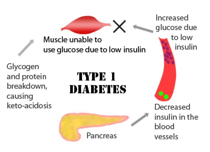 causes of type i and ii diabetes ## diabetes causes hypertension ★★ what is type ii diabetes the 7 step trick that reverses diabetes permanently in as little as 11 days[ diabetes causes.