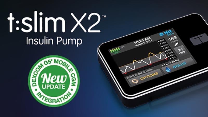 Tandem insulin pump with Dexcom integration
