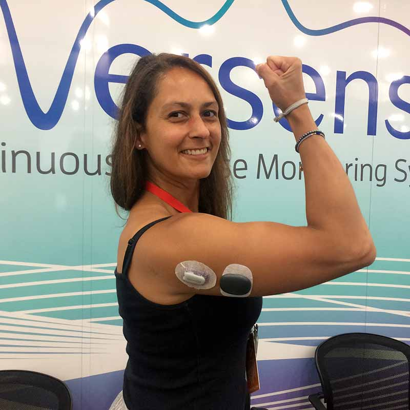 Christel with an Eversense and a Dexcom transmitter on her arm
