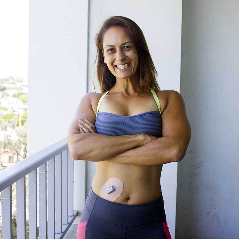 Christel with her CGM and Skin Grip on her stomach