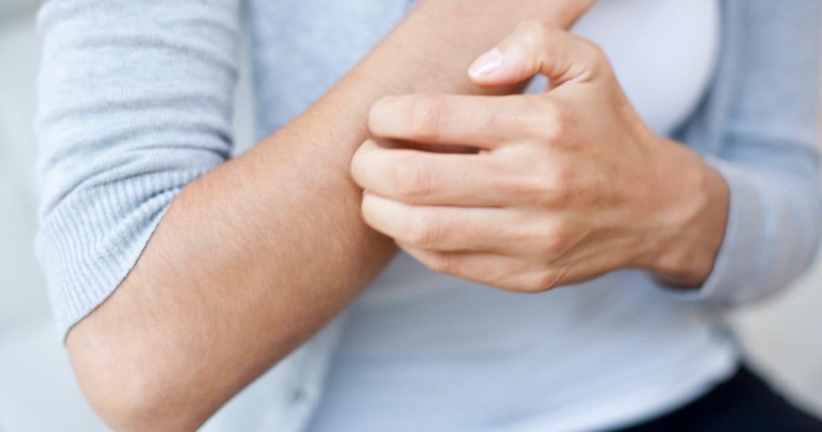 Common diabetes skin problems